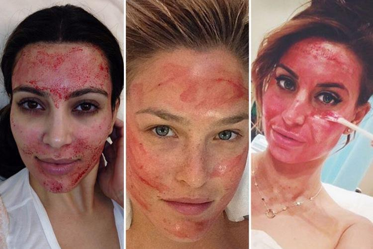 """""""Vampire Facials"""" cause two cases of HIV…"""