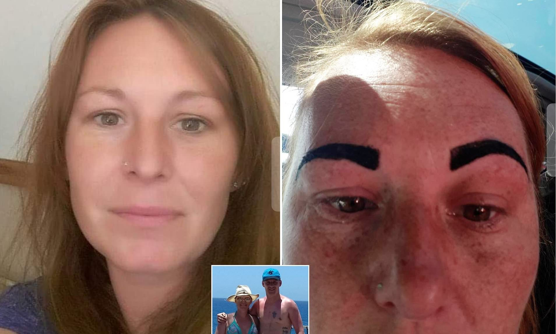 "Woman left with ""Angry Bird Eyes"""