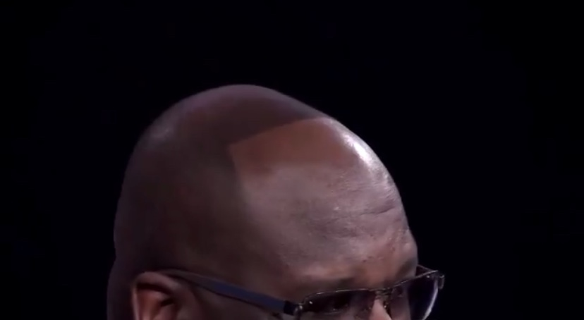 Hide Your Children, Hide Your Wife Shaq Has Hair And It's Something