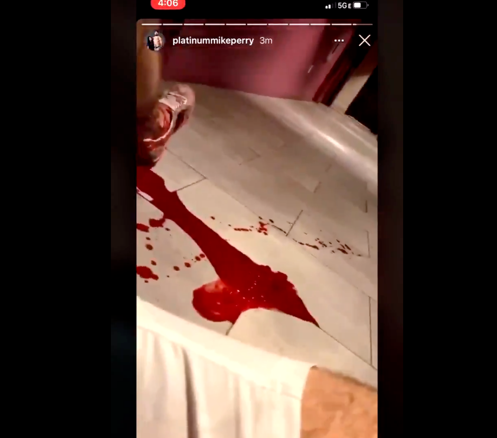 UFC Fighter Mike Perry Posted A Video Of Him Bleeding On Instagram